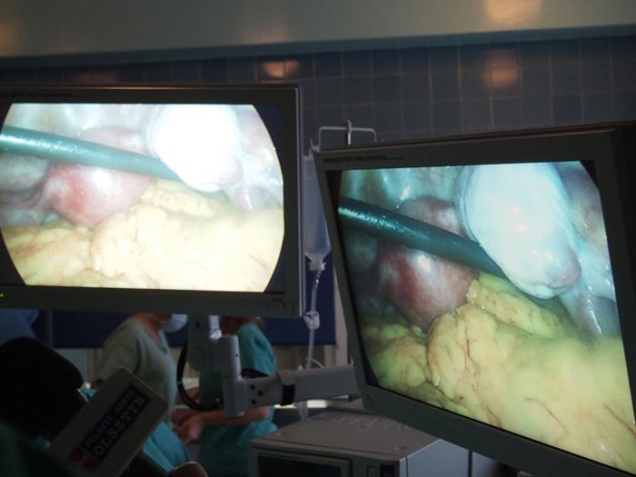 operacja, zdrowie, szpital