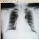 Sukces pulmonologii w Elblągu