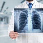 Na raka chorują coraz częściej osoby niepalące
