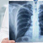 Mieszkańcy Warmii i Mazur nie dbają o zdrowie. To u nas najwięcej osób umiera na choroby płuc