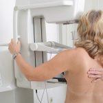 Bezpłatna mammografia dla mieszkanek Fromborka. Warto zapisać się już dziś