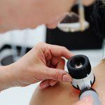 Z roku na rok rośnie liczba nowotworów skóry. Posłuchaj audycji Na Zdrowie (20.06.2020)