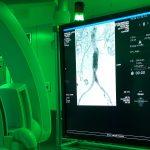 W Szpitalu Wojewódzkim w Olsztynie otwarto jedyną w regionie operacyjną salę hybrydową