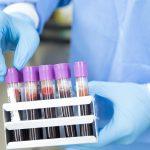 Trzy osoby z Warmii i Mazur wyzdrowiały, odnotowano też dwa nowe zakażenia koronawirusem