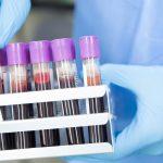 2 nowe zakażenia koronawirusem na Warmii i Mazurach. W całym kraju jest ich 309, najwięcej na Śląsku